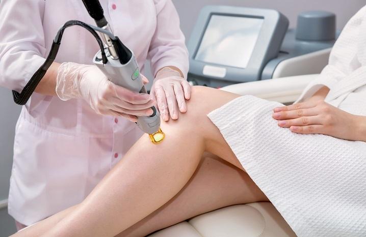 Depilacja laserowa - nogi